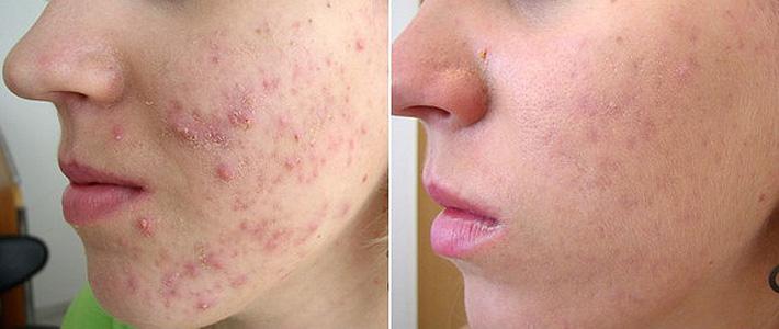 Лечение прыщей на лице салициловой кислотой
